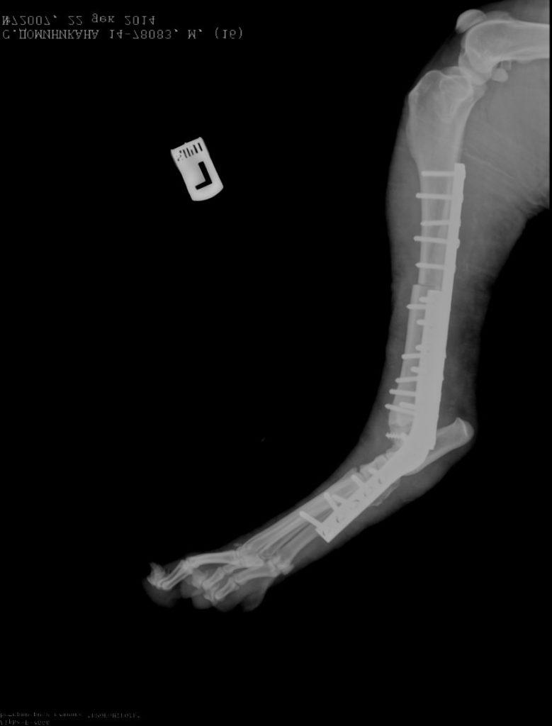Рентгенограмма левой тазовой конечности в боковой проекции через два месяца после операции