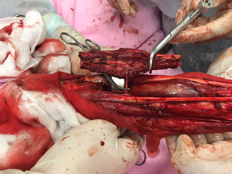 Широкая сегментарная резекция дистального сегмента костей левой голени