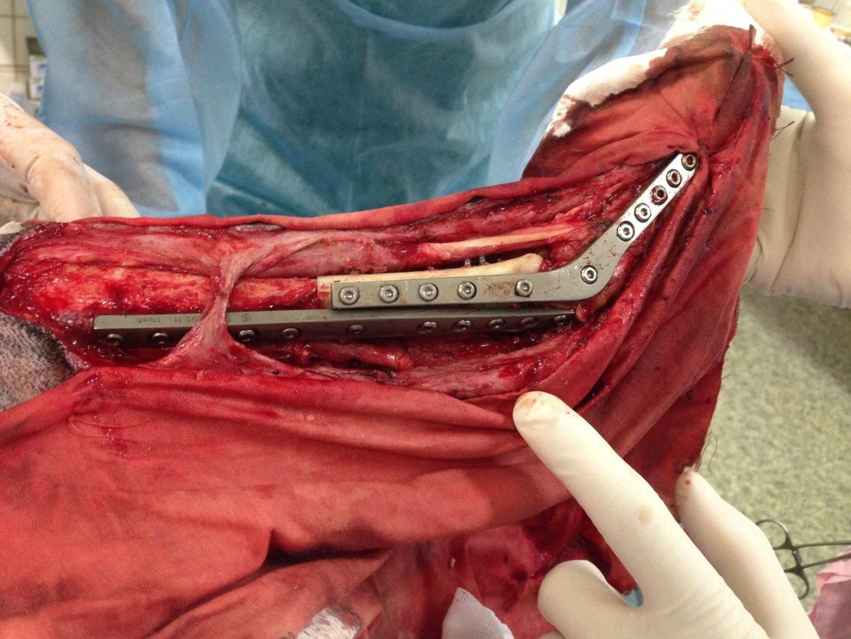 Замещение дефекта дистального сегмента левой голени биоимплантатом